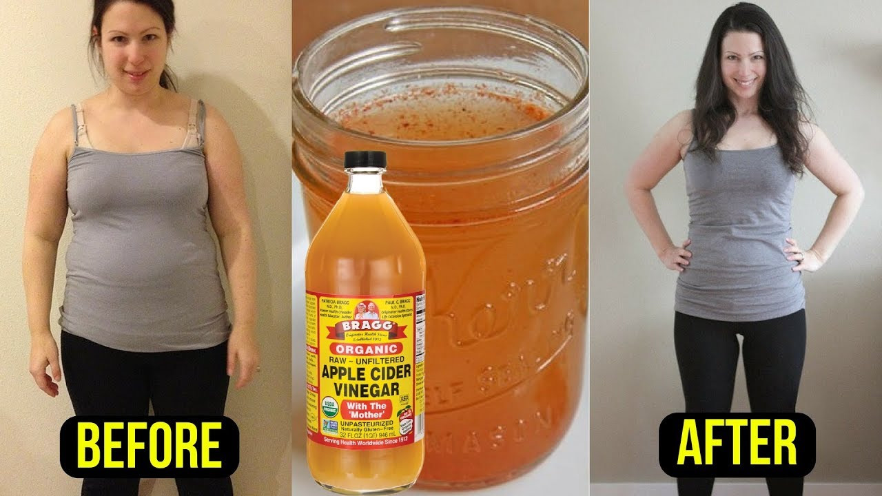 Burn Belly Fat Fast Drink  Take 1 Tablespoon of Apple Cider Vinegar & Burn Belly Fat