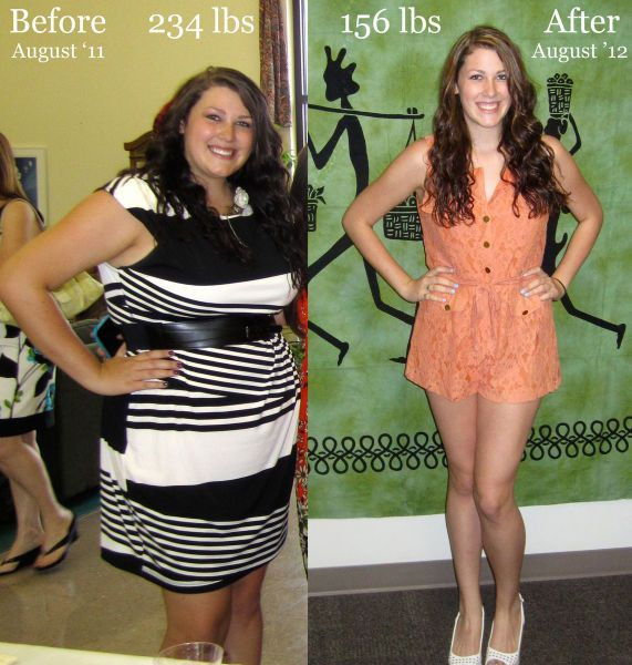 Life After Weight Loss Surgery  Weight Loss Surgery
