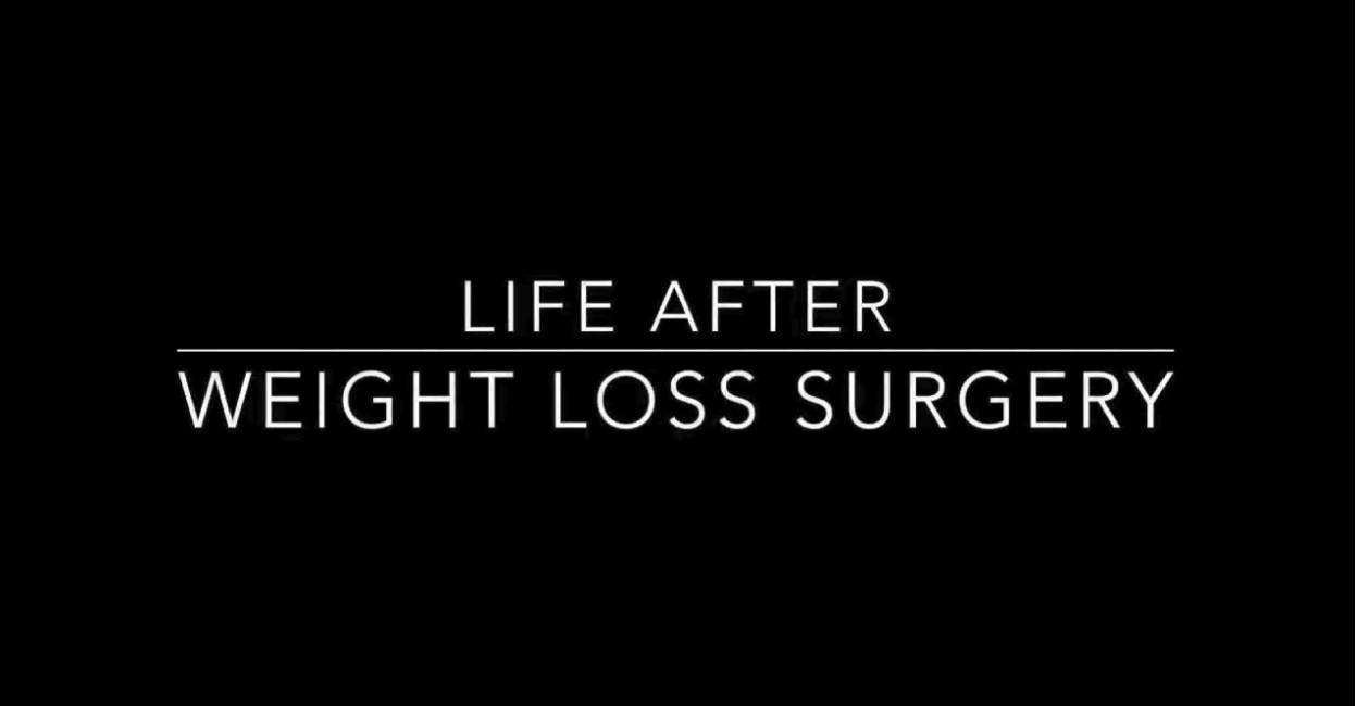 Life After Weight Loss Surgery  life after weight loss surgery Texas Health Presbyterian