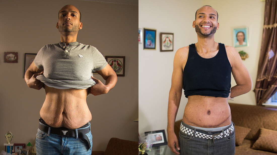 Loose Skin After Weight Loss Surgery  How To Avoid Having Loose Skin Before and After Weight Loss