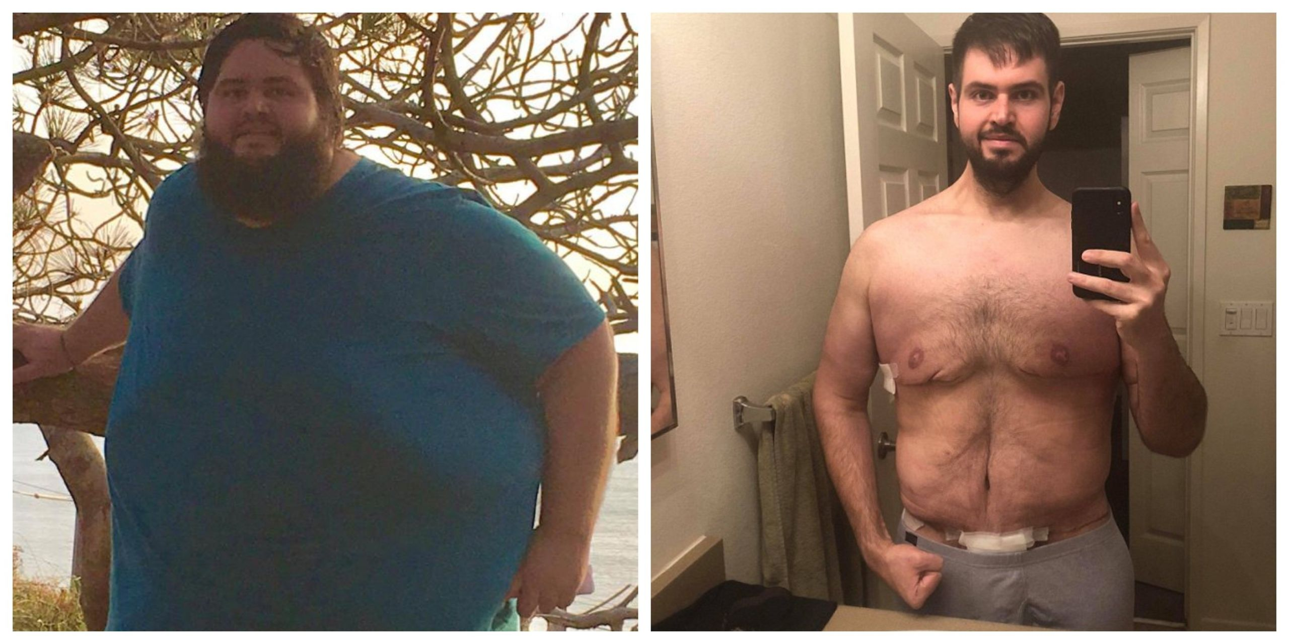 Loose Skin After Weight Loss Surgery  Man Loses 300 lbs Has To Have Surgery To Remove 13 lbs