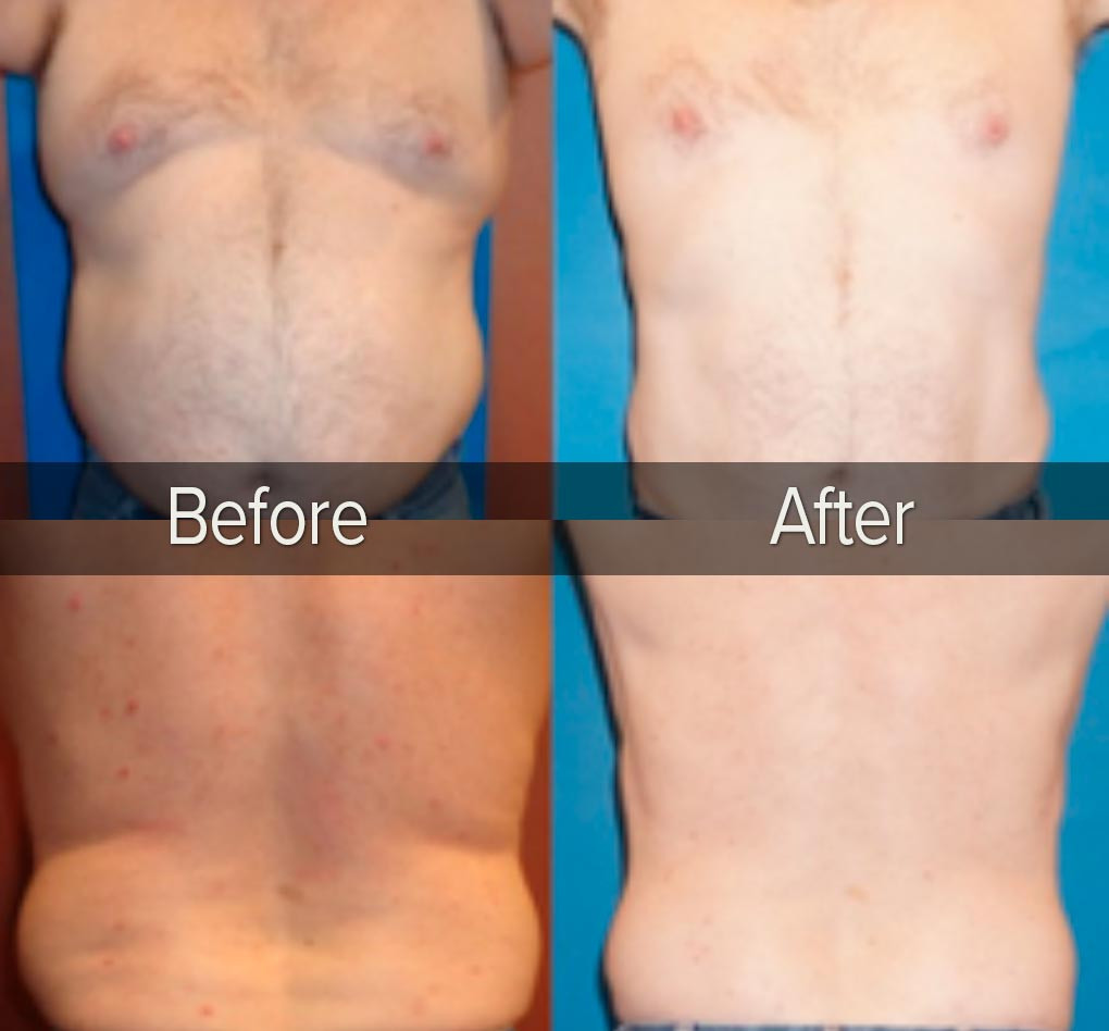 Loose Skin After Weight Loss Surgery  Post Weight Loss Skin Tightening New You Bariatric Center