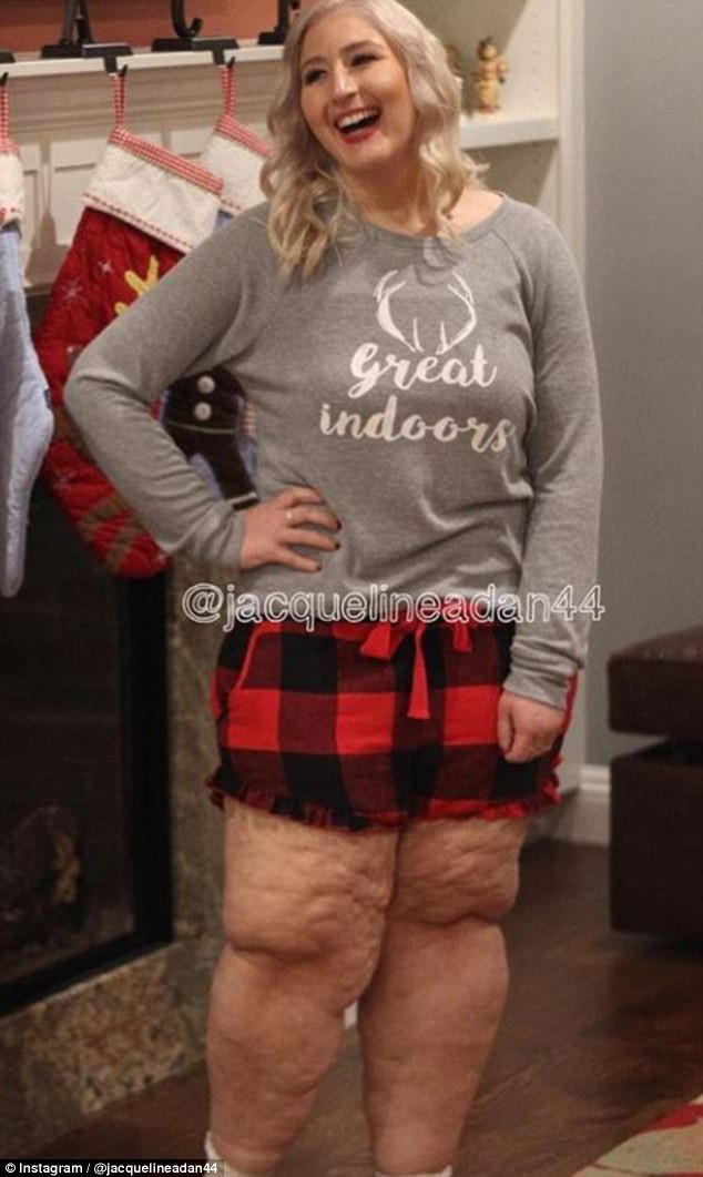 Loose Skin After Weight Loss Surgery  Woman reveals details of leg loose skin removal surgery