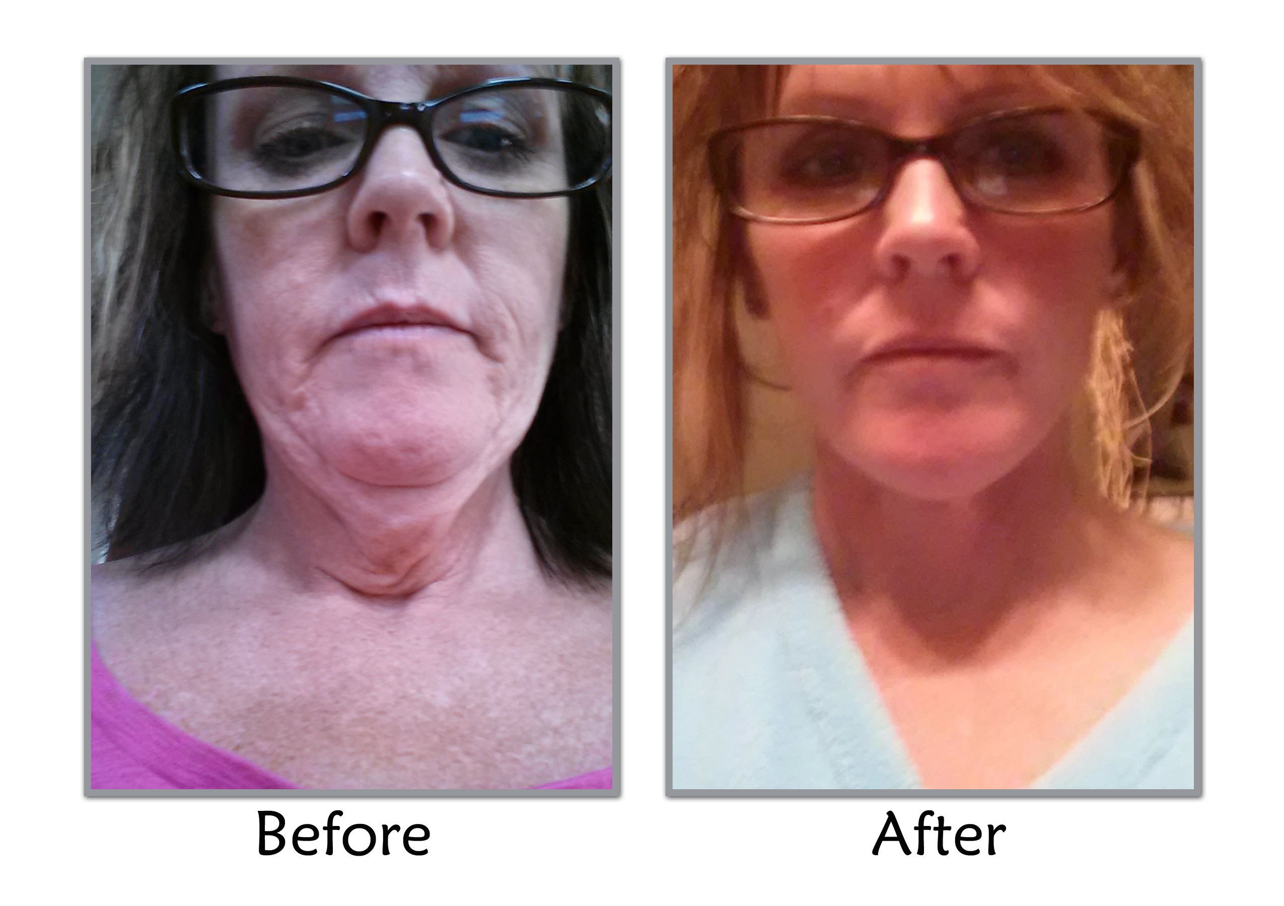 Loose Skin After Weight Loss Surgery  Facelift After Weight Loss in Salt Lake City
