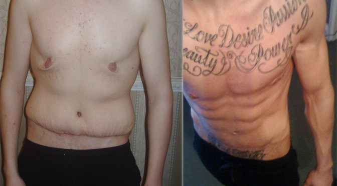 Loose Skin After Weight Loss Surgery  How to tighten loose skin – The Facts