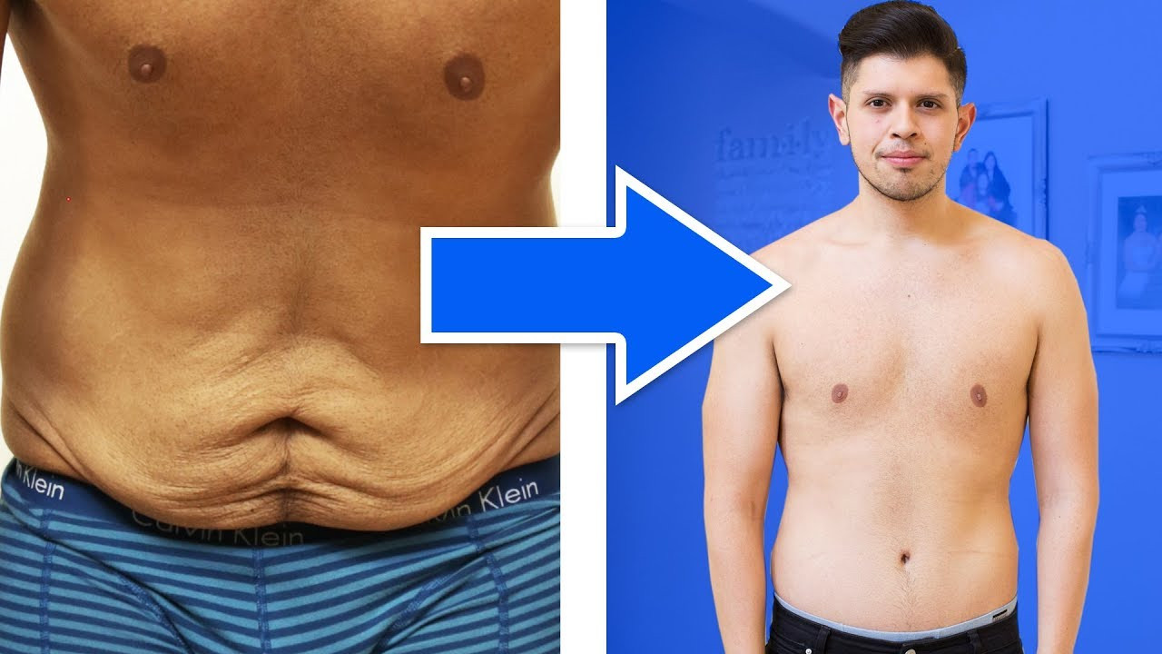 Loose Skin After Weight Loss Surgery  Cost To Remove Excess Skin After Weight Loss WeightLossLook