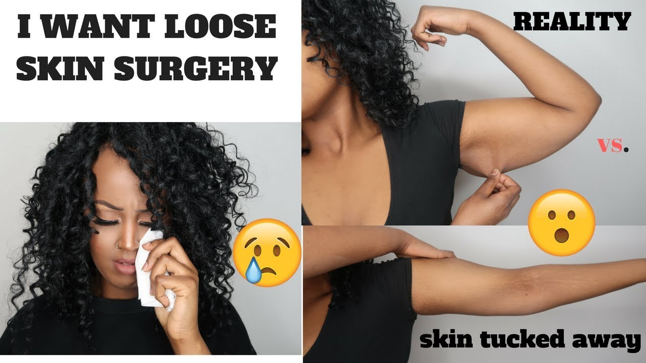 Loose Skin After Weight Loss Surgery  I WANT PLASTIC SURGERY LOOSE SKIN AFTER 120 POUND