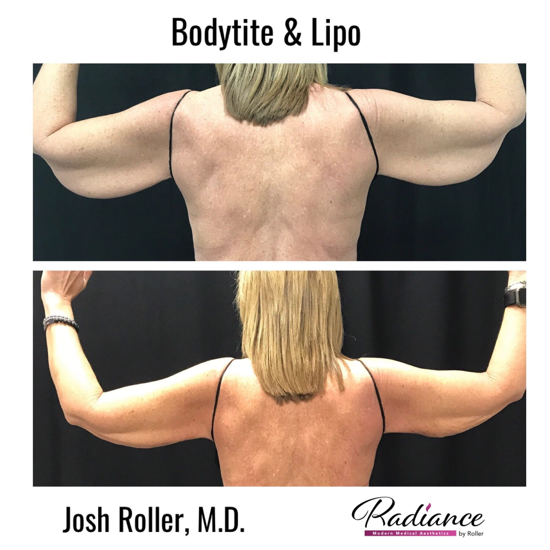 Loose Skin After Weight Loss Surgery  Loose Skin After Weight Loss Surgery Roller Weight Loss