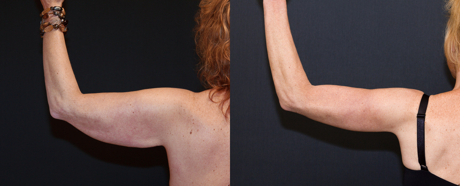 Post Weight Loss Surgery  Arm Lift After Weight Loss DeLuca Plastic Surgery