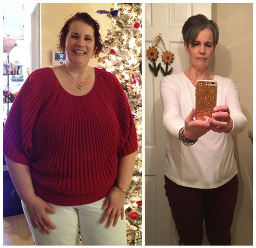 Post Weight Loss Surgery  Cheryl Loses 98lbs High BP & Cholesterol After Weight