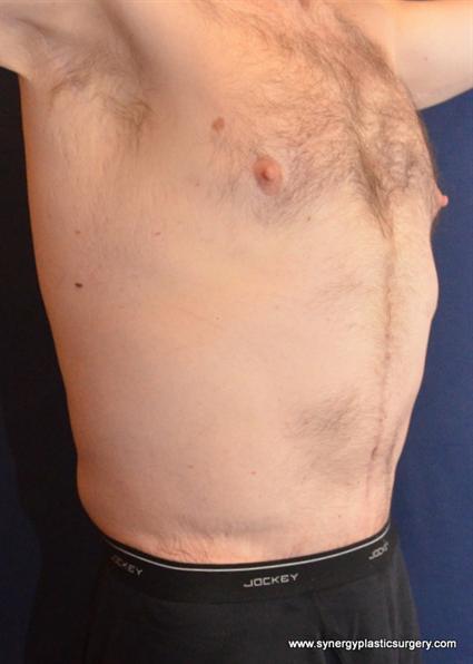 Post Weight Loss Surgery  Austin Post Weight Loss Surgery s Case 599