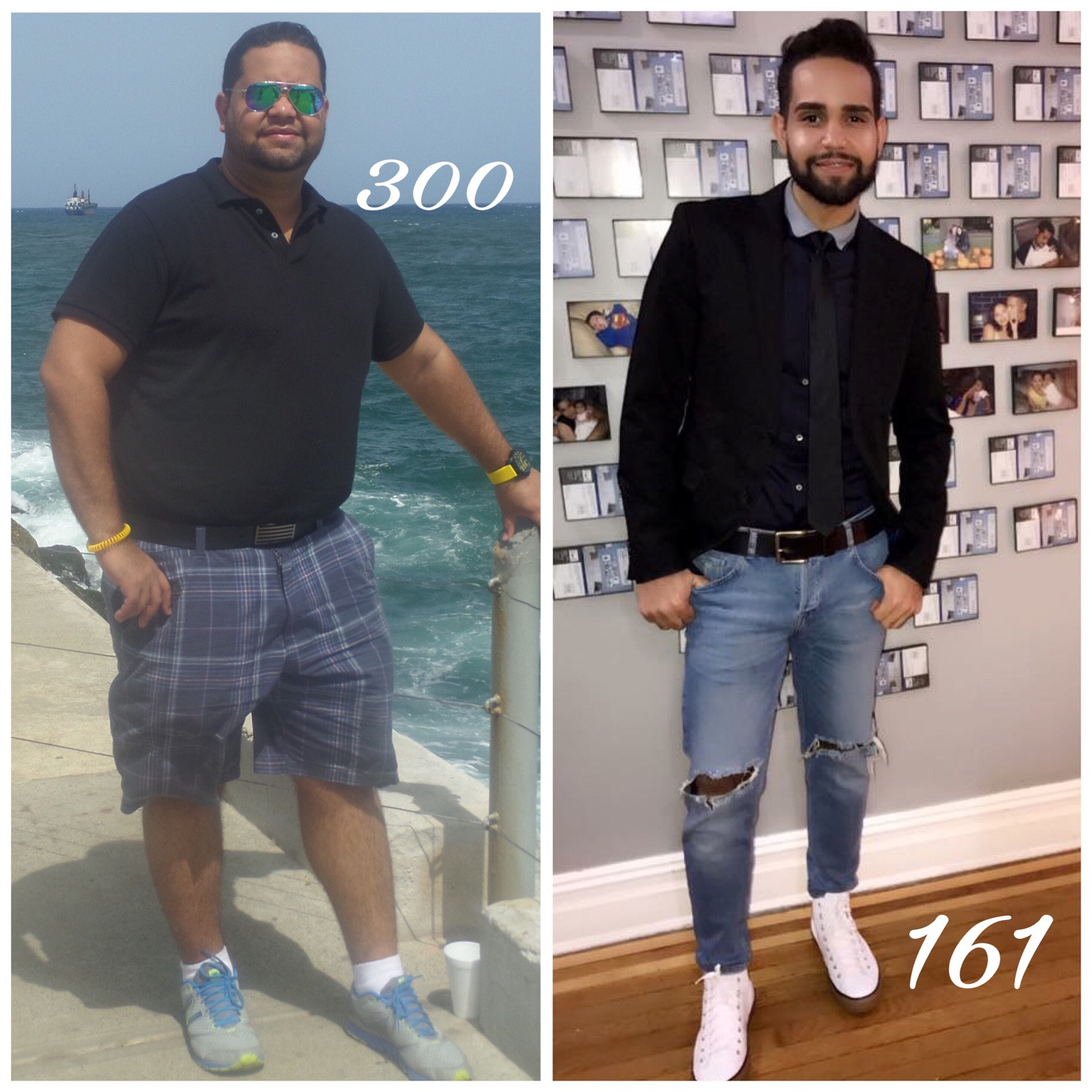 Post Weight Loss Surgery  Before and After My Bariatric Surgery POST Operation