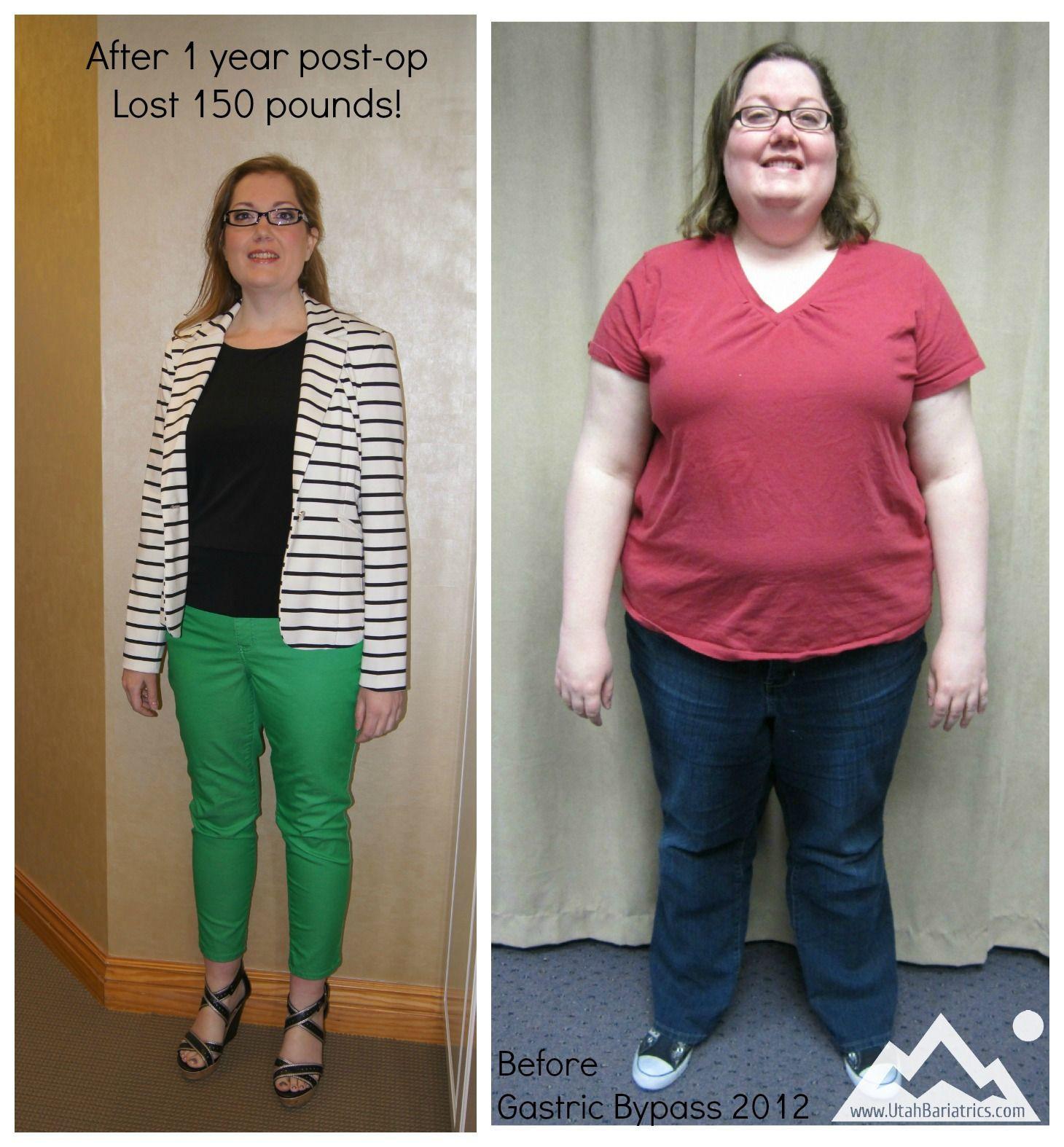 Post Weight Loss Surgery  Gastric Sleeve Post Op Weight Gain – Blog Dandk