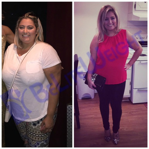 Weight Loss Surgery Before And After Sleeve  Karina s 2 4 and 6 Month Sleeve Story BeLiteWeight