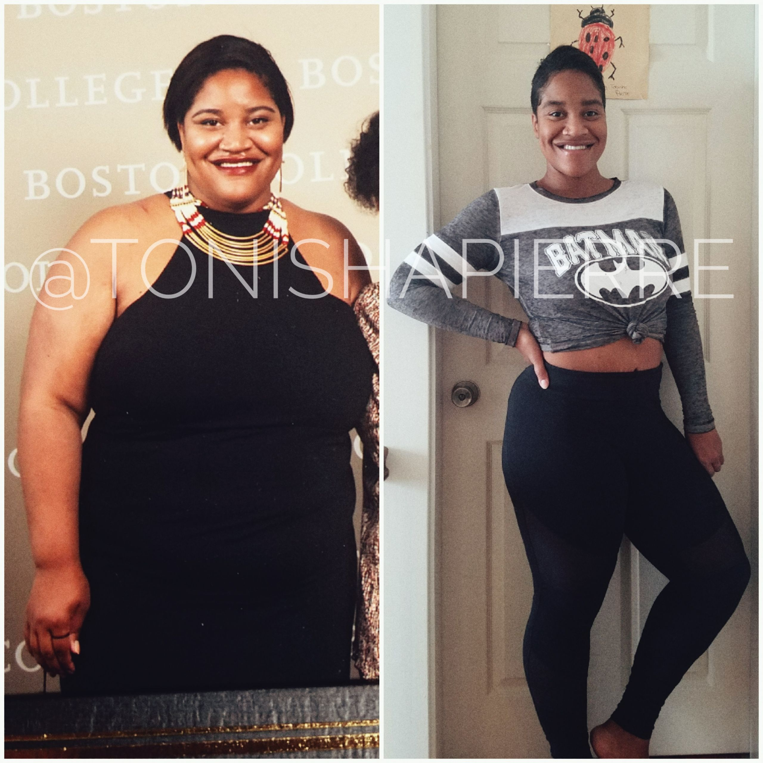 Weight Loss Surgery Before And After Sleeve  My 115 Pound Weight Loss Before and After with Gastric