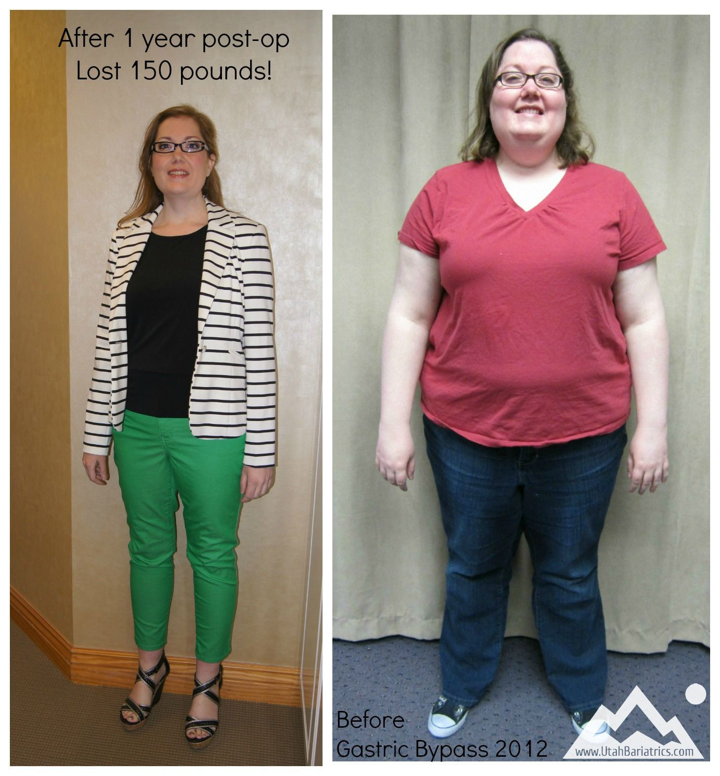 Weight Loss Surgery Before And After Sleeve  Gastric Sleeve Post Op Weight Gain – Blog Dandk
