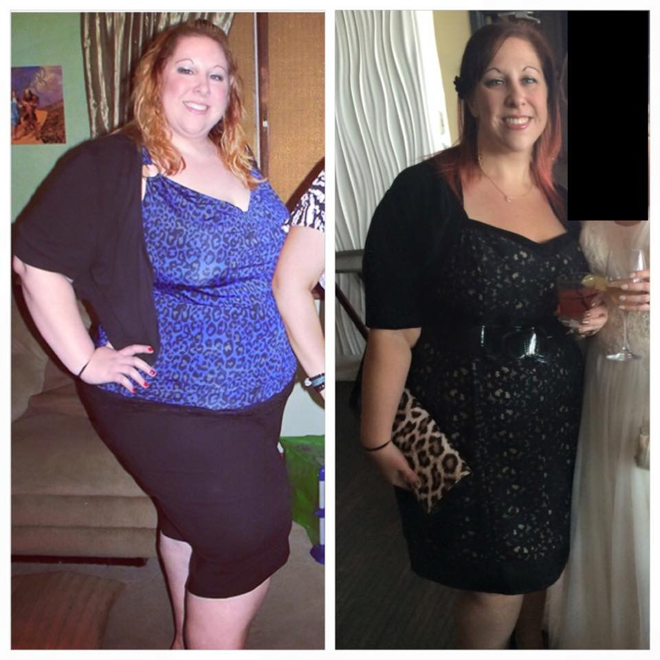Weight Loss Surgery Before And After Sleeve  Gastric Sleeve Success Rate How Much Weight Will You