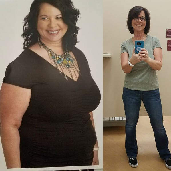 Weight Loss Surgery Before And After Sleeve  Gastric Sleeve Before and After s The Best