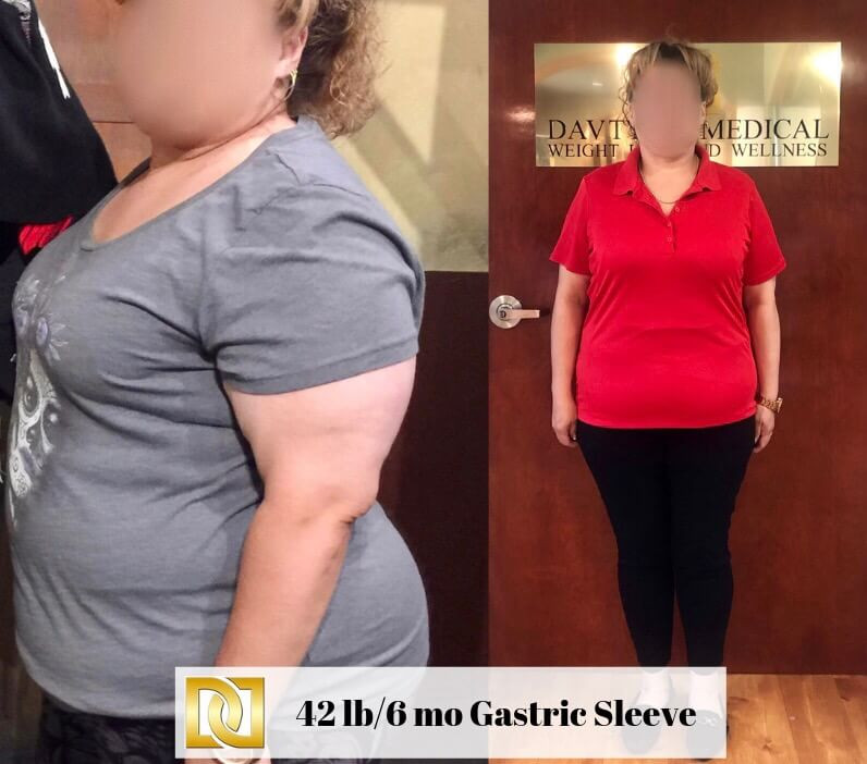 Weight Loss Surgery Before And After Sleeve  Gastric Sleeve Surgery in Los Angeles
