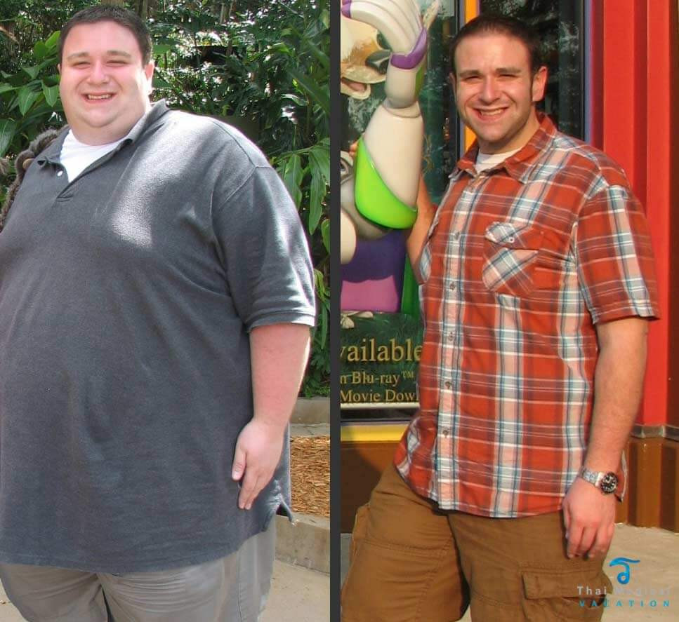 Weight Loss Surgery Before And After Sleeve  Gastric Sleeve Before and After and What You Can