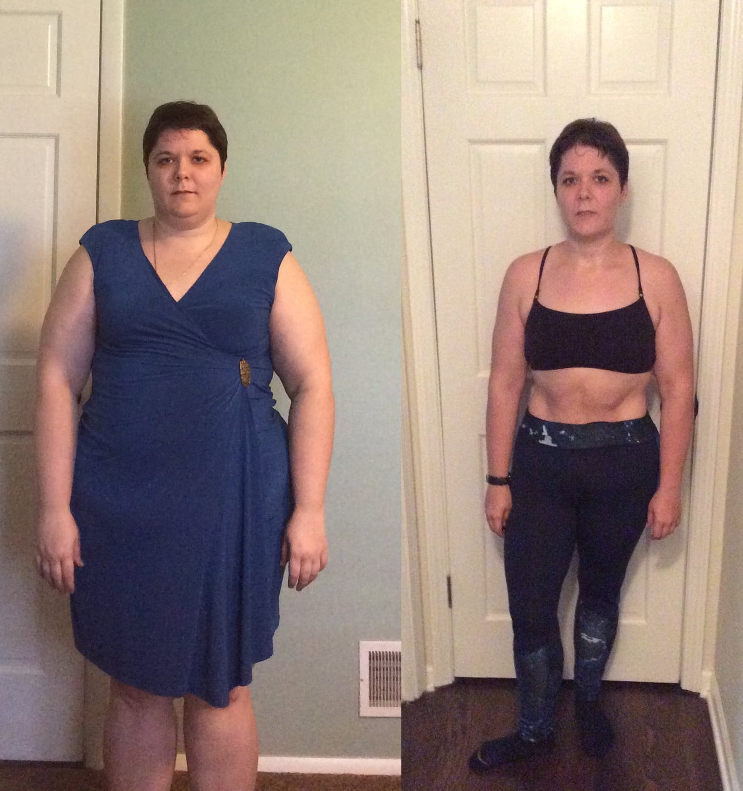 Weight Loss Surgery Before And After Sleeve  Gastric Sleeve Surgery Weight Loss Transformation