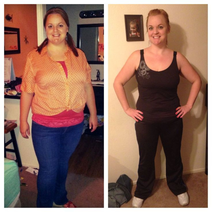 Weight Loss Surgery Before And After Sleeve  1000 images about Before and after gastric sleeve on