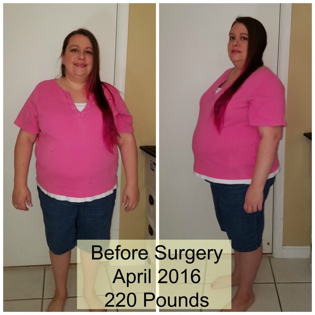 Weight Loss Surgery Before And After Sleeve  My Road to Gastric Sleeve Weight Loss Surgery Cori s