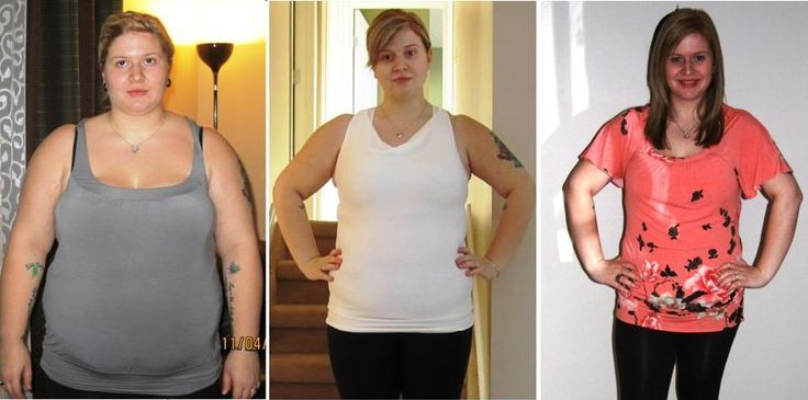 Weight Loss Surgery Before And After Sleeve  Pin on SLEEVE SURGERY WIGHT LOST