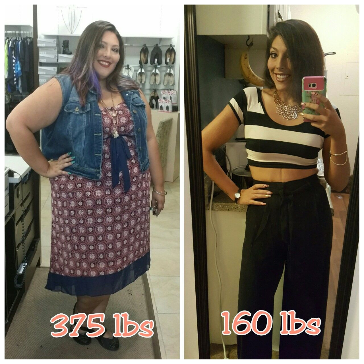 Weight Loss Surgery Before And After Sleeve  Vsg Weight Loss Before And After