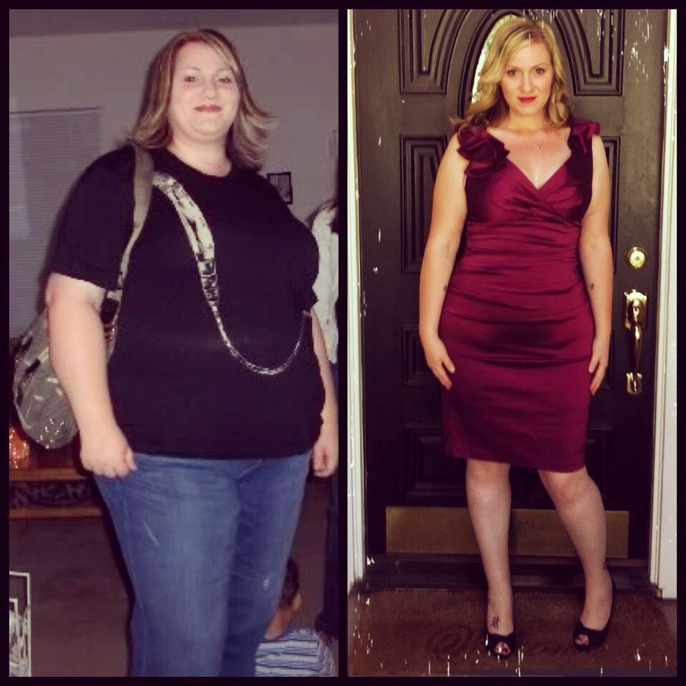 Weight Loss Surgery Before And After Sleeve  Weight Loss Surgery Before & After s on Pinterest
